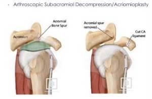 subacromial