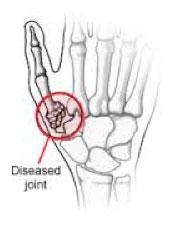 thumb-surgery