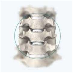spine-closeup