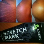 laser stretch mark removal by shahorla tattoo and beauty studio