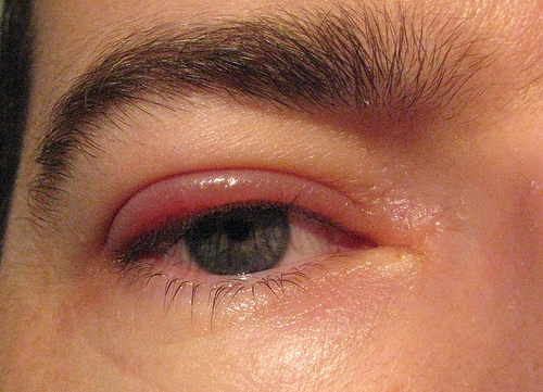 Easy Home Remedy For Itchy Eyes To Give You Instant Relief!