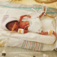23 weeker on Micro Preemie Monday: Jaxon's Story