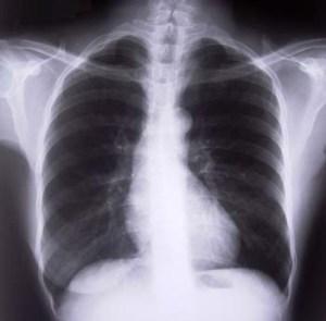 Everyone with celiac should get a Dexa Scan to check their bone density