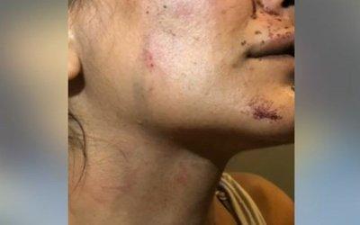 ضربها وحاول تشويهها في الكسليك لأنها رفضته!