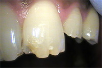 Chipped teeth: enamel fractures