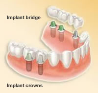 dental implant crowns and implant bridge