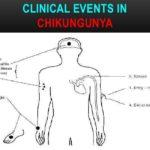 chickengunya8