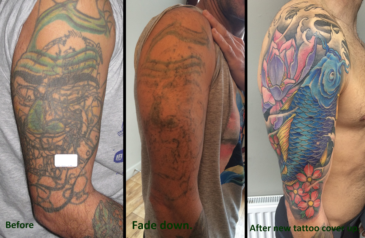 Laser Tattoo Removal Bolton Shattered Ink Bolton Lancashire