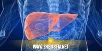سيدي بوزيد: وفاة طفلة مصابة بالفيروس الكبدي صنف