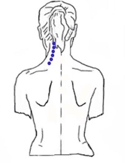Shiatsu en Silla Cervical Posterior