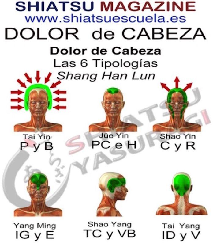 Dolor de Cabeza las Seis Tipologías.