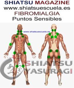 Fibromialgia Puntos Sensibles