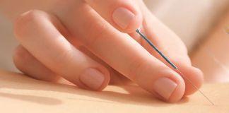 acupuntura-zonal-curso