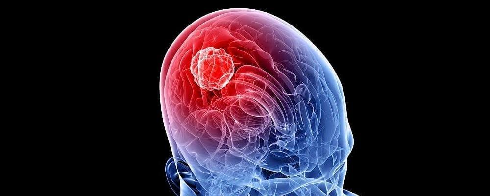 Aggressive Brain Tumors
