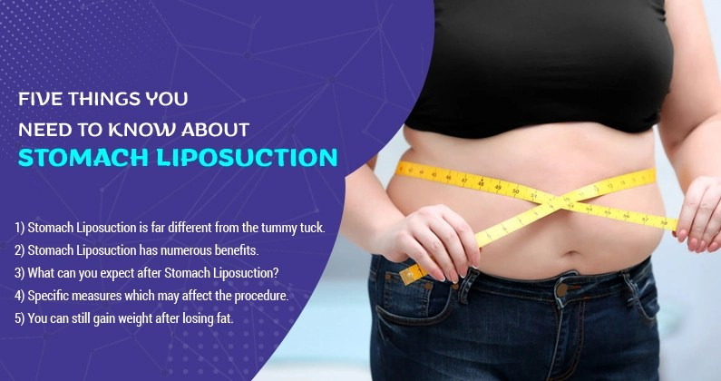 Five-Things-You-Need-to-Know-About-Stomach-Liposuction