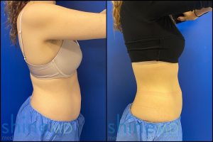 CoolSculpting Center in Houston