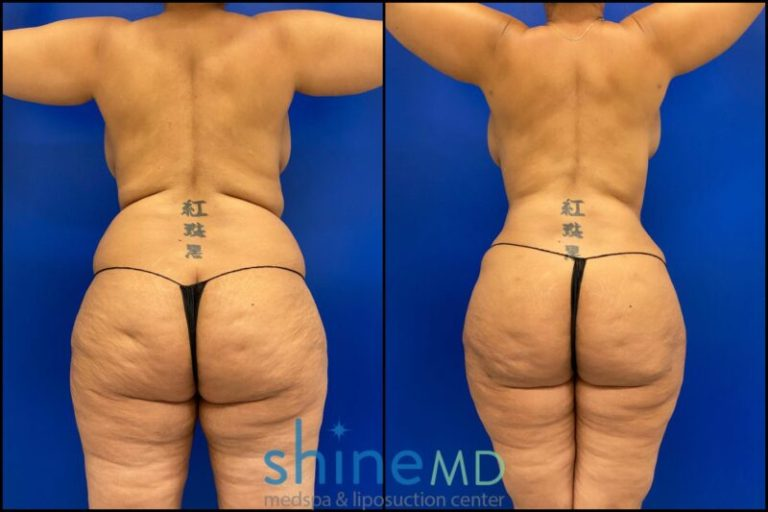 Liposuction Back View before and after shine patient 002049