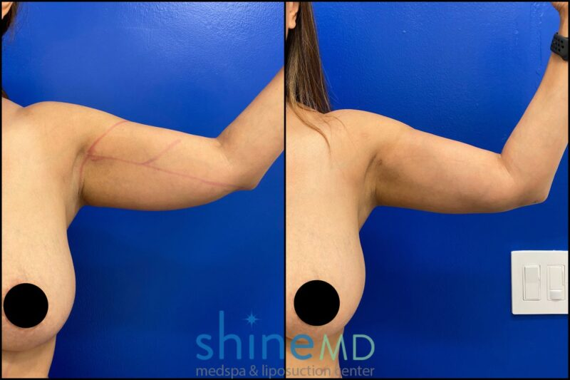 Front Left Arm view of arm liposuction before and after gallery shinemd patient 002042