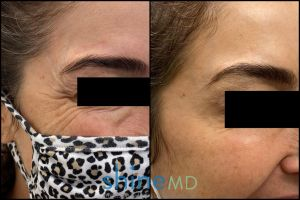 botox for crow's feet before and after two weeks f/u