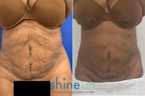 skin tightening results before and after three skintyte treatments