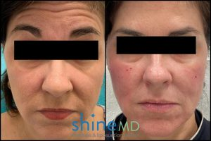 botox forehead before and after shinemd patient 2056