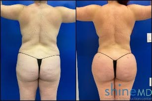 liposuction 360 with BBL before and after image