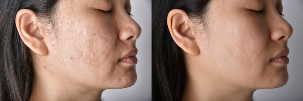 Skin problems and acne scar, Before and after dermal fillers treatment