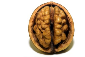 Hold on, that's not a brain!