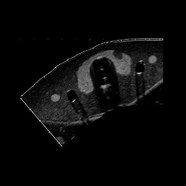 échographie structures internes fantôme d'entraînement biopsie thyroïde