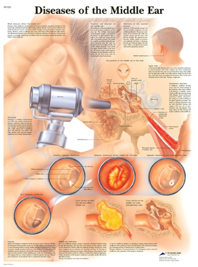 Diseases of the Middle Ear - Anatomical Chart, Anatomy ...