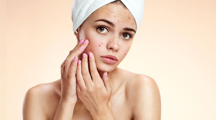 tips to deal with acne