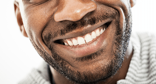 Things Women Find Attractive - Clean Teeth