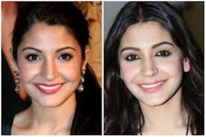 Anushka Sharma's Lip Job, Hmmmmm!