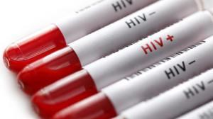 Tratamento que elimina o HIV é apresentado por pesquisadores brasileiros 16