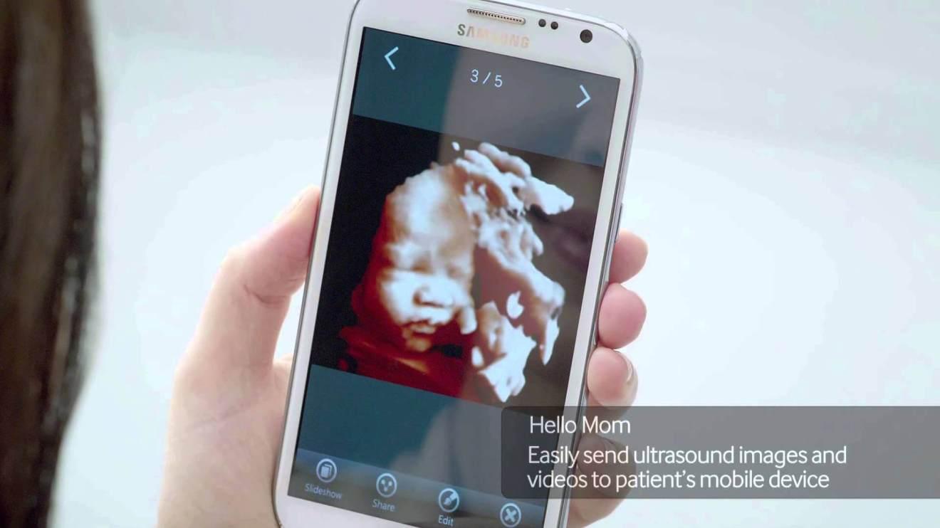 HelloMomYOBA201601 - Hello Mom: aplicativo compartilha ultrassom do bebê em tempo real