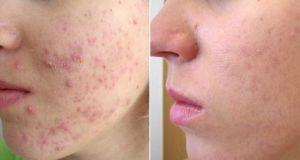 como quitar granos piel