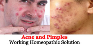 Acne and Pimples – 100% Effective Homeopathic Remedies