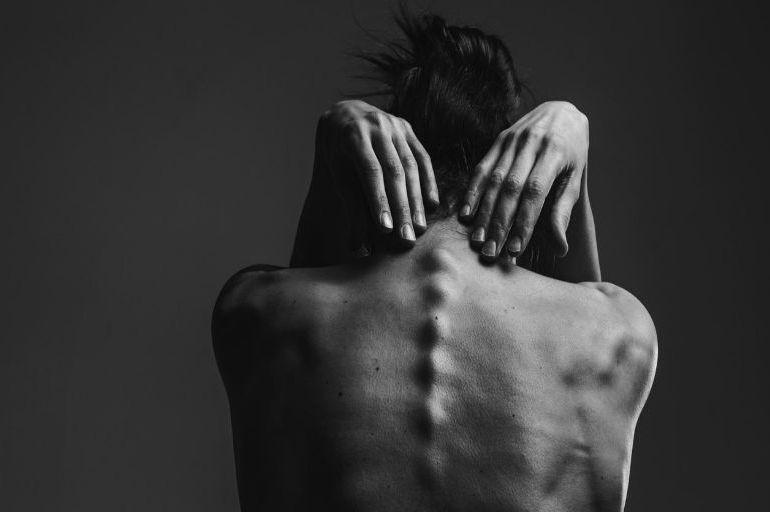Anoressia: l'inferno e la rinascita di Anna. Da zombie a donna coraggiosa