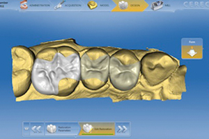 Cerec - Same Day Crowns Atlanta Dentist