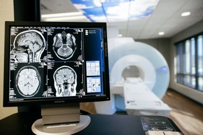 Brain scans on a screen at Sierra Neurosurgery Siemens MRI imaging center Reno NV