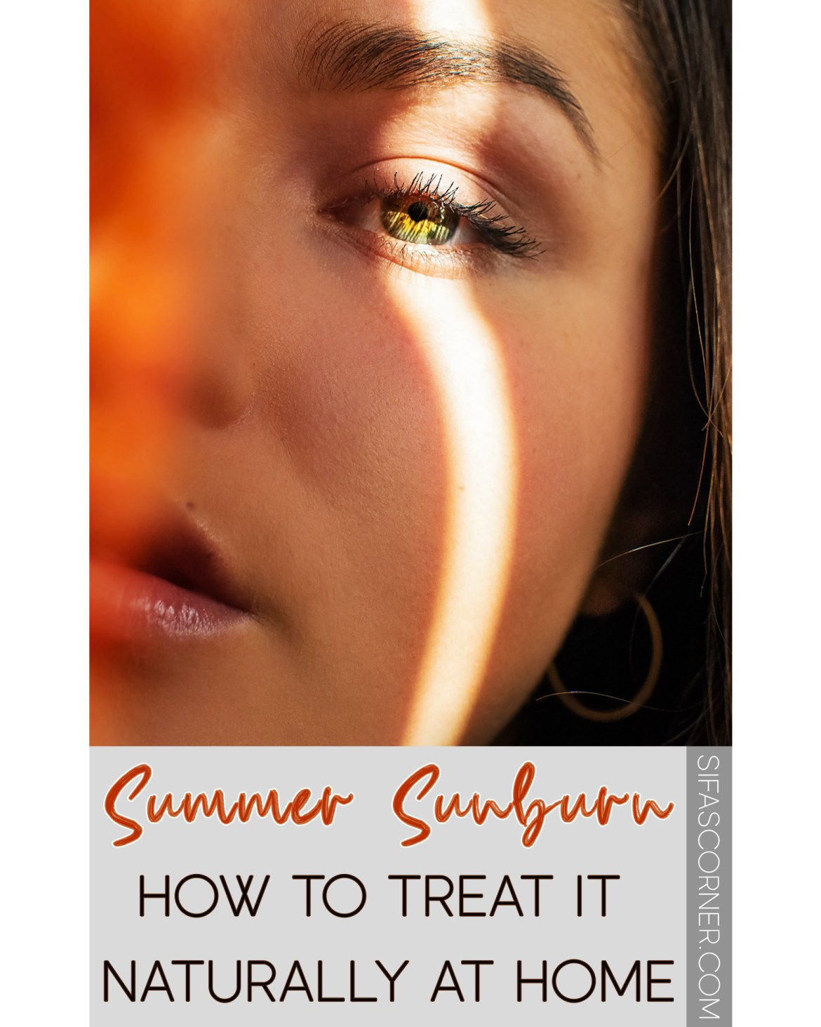 How to treat summer sunburn naturally at home