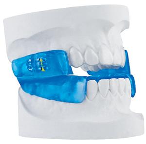 Dental appliance for snoring treatment Scottsdale