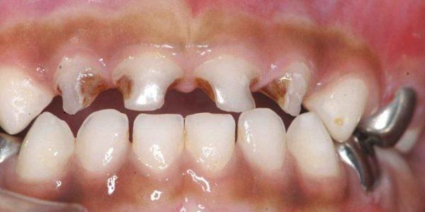 sonhar que o dente do meu filho estava quebrado