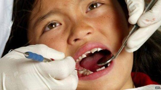 dentista arrumando dente quebrado
