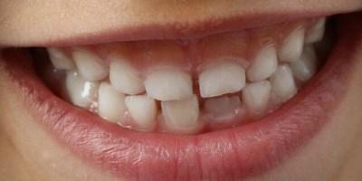 sonhar que o dente do meu filho está mole