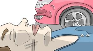 Striking Injury