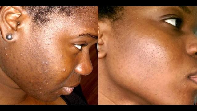 Un visage sans tâches c'est possible #Tache #Visage #bouton #skinroutine #skincare #beauty