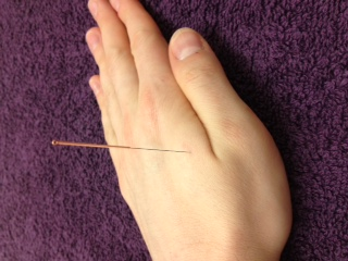 hot flashes and acupuncture
