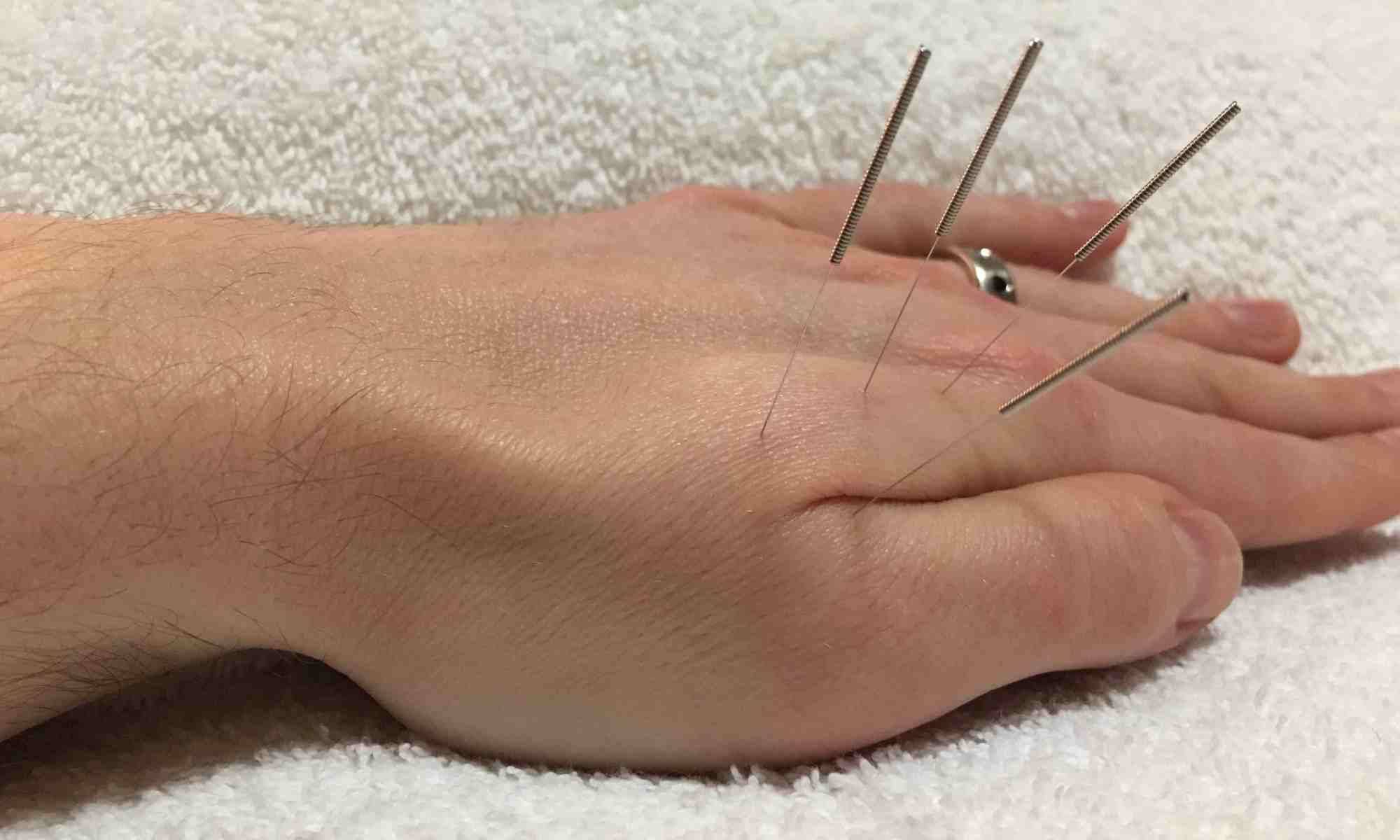 Acupuncture Hand