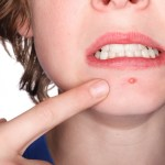 10 Natural Ways to Get Rid Of Pimple